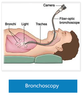 Bronchoscopy in Medicaid Hospital