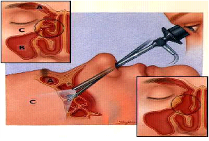 endoscopic-surgery