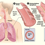 Asthma Symptoms  Treatment